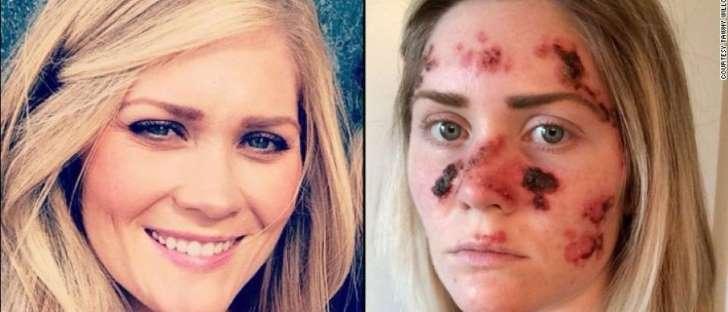 Bronzeamento artificial causa câncer e deforma rosto de amer